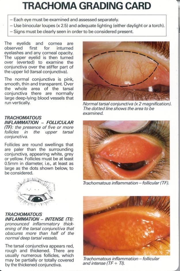 trachoma_english