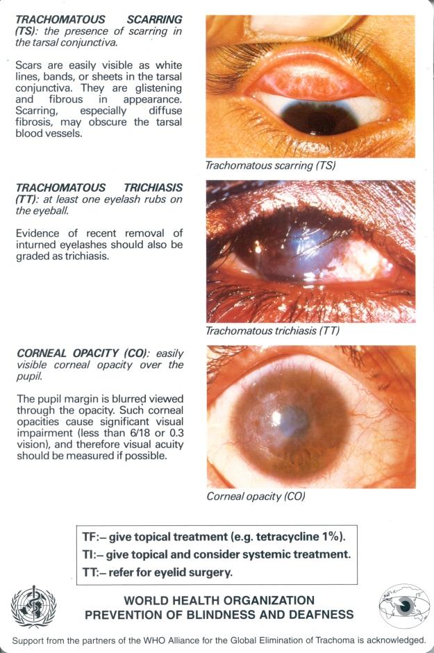 trachoma_english1